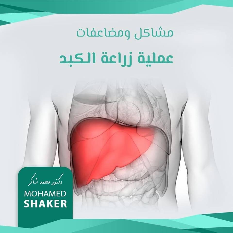 ايه اشهر مشاكل ومضاعفات عملية زراعة الكبد يعتبر الرفض أكبر المشاكل إضافة لمشاكل تانية شهيرة زي النزيف وانسداد الاوعية أو الوصلات أو الالتهابات إض Aoc Shaker