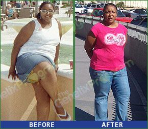 Weight loss pills by fda
