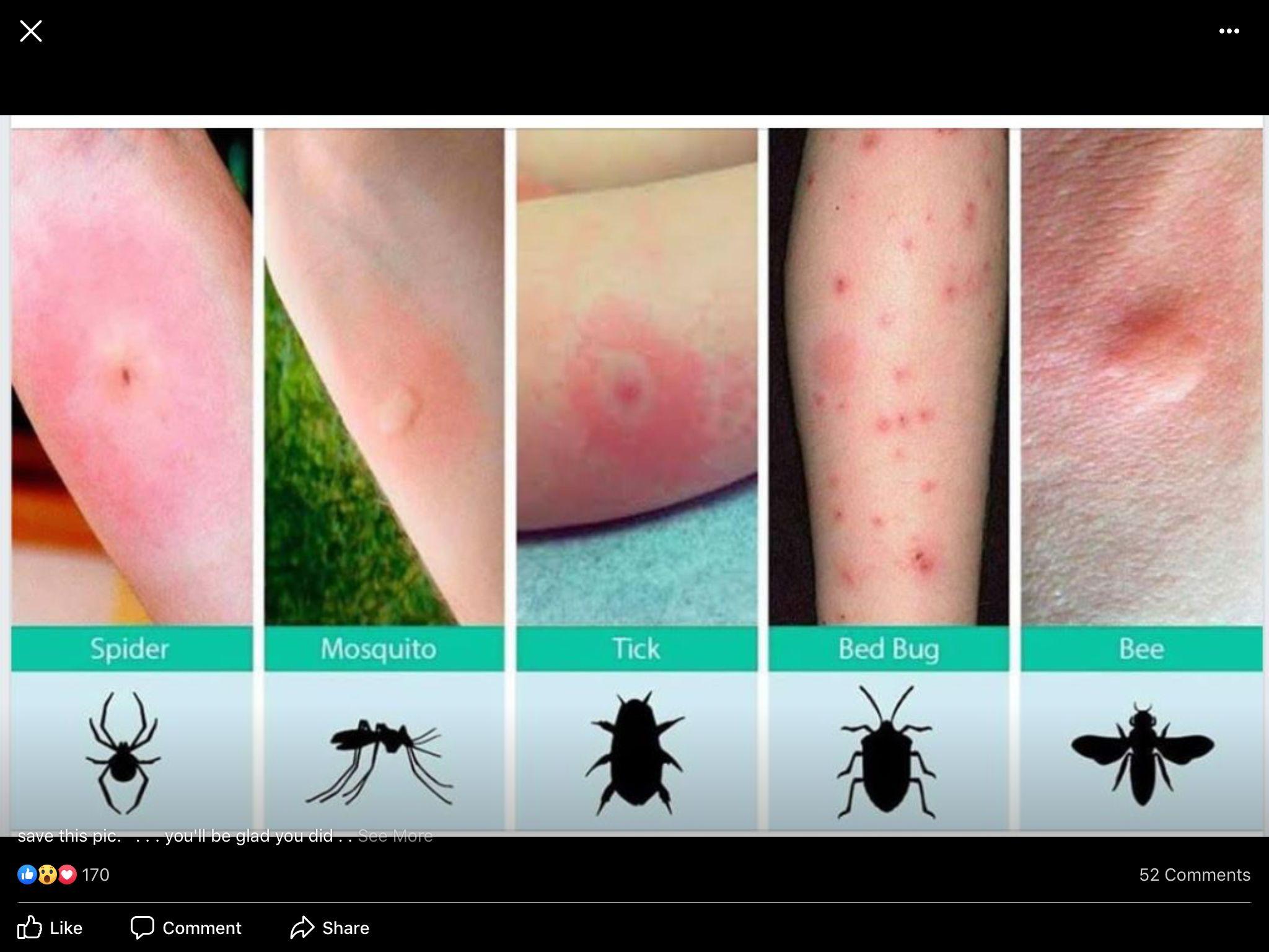 Pin by Kathy Blackmon on Likes Bed bug bites, Bug bites