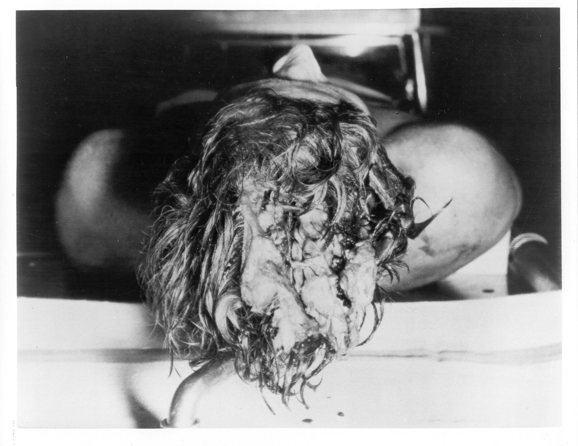 jfk lancer autopsy photos forensics jfk the o jfk lancer autopsy photos