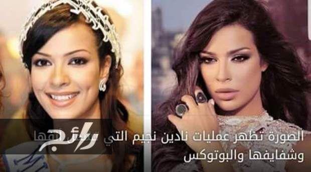 صور صادمة لـ نجمات العالم العربي قبل وبعد التجميل Ra2ej Jabi Stars Crown