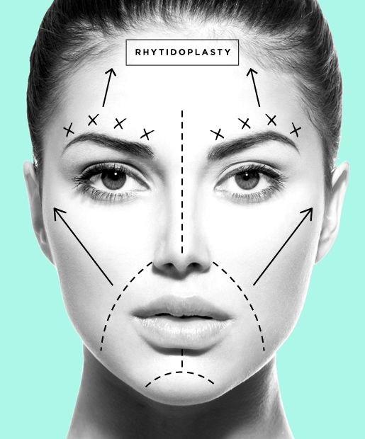 Going Under the Knife? Read This First! From Ow, to WOW!  Post-surgery patients share their  experience of their Rhytidoplasty aka facelift procedure