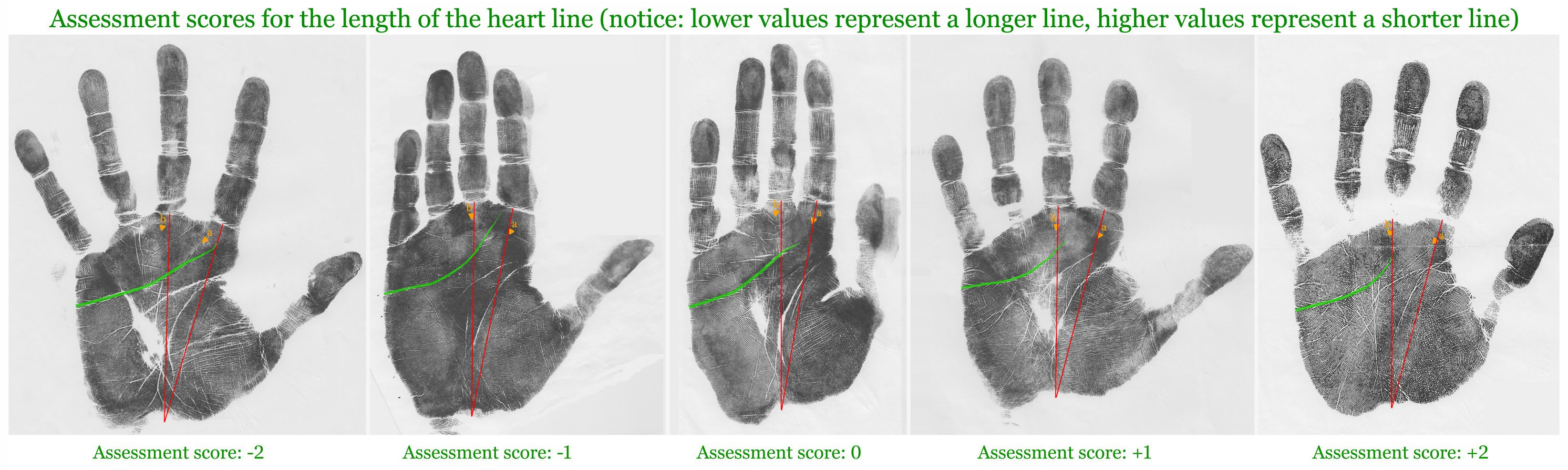 Assessment scores for the length of the heart line [upper transverse crease].