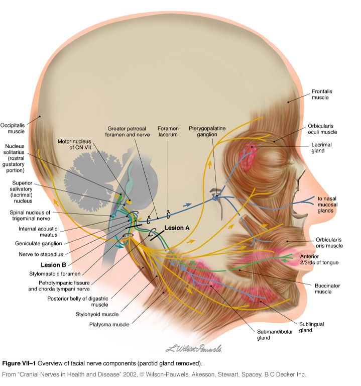Facial Palsy - Physiopedia, universal access to physiotherapy ...
