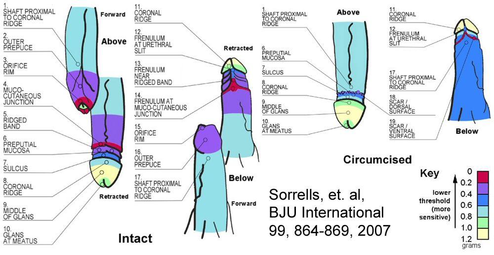 Sorrells Chart The Sorrells Study Graphs The Areas Of Sensitivity