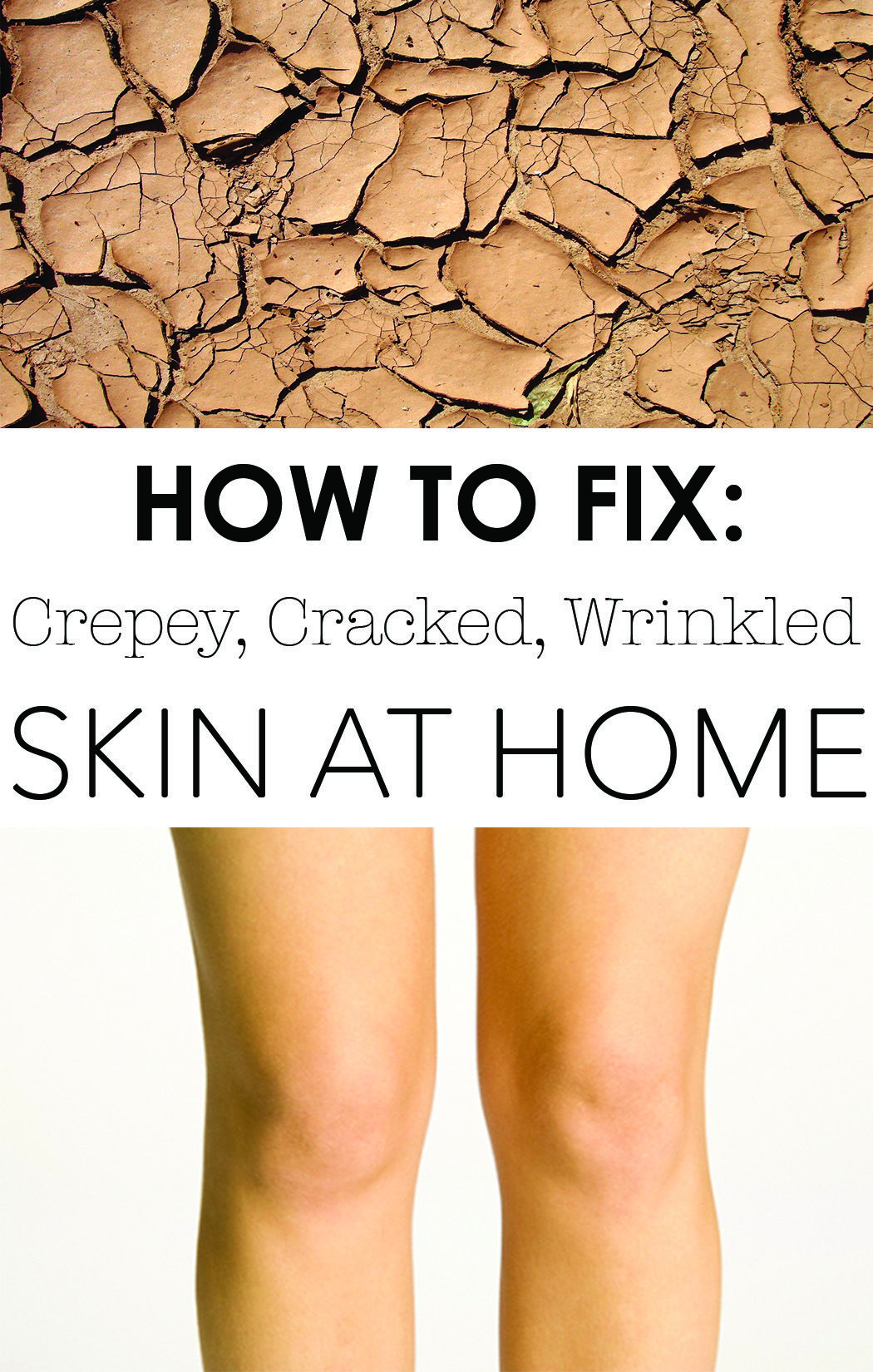 e9c4c804e17f45eb57e56323a784e12d - How To Get Rid Of Crepey Skin On Knees