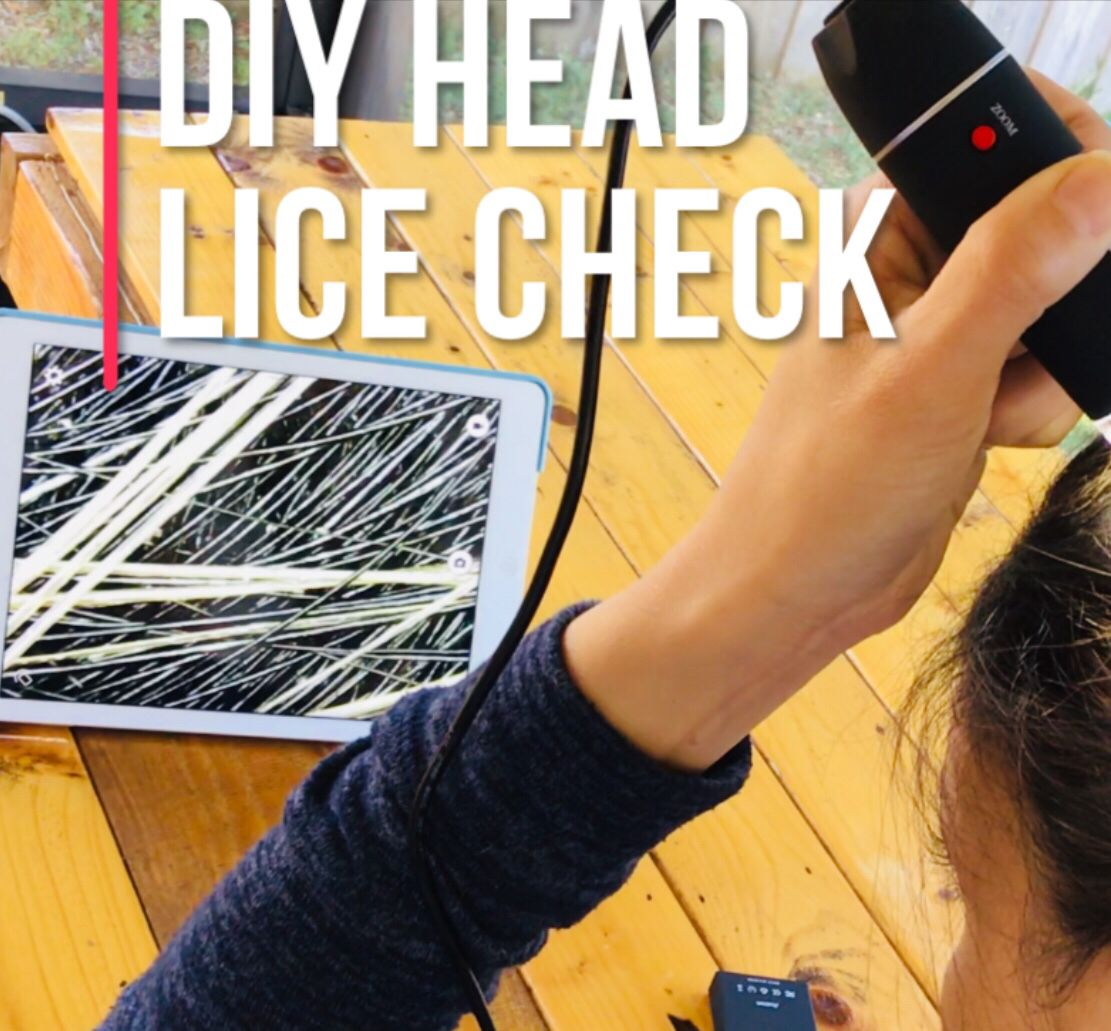 Lice Detection Scope Hard finding those nits and lice