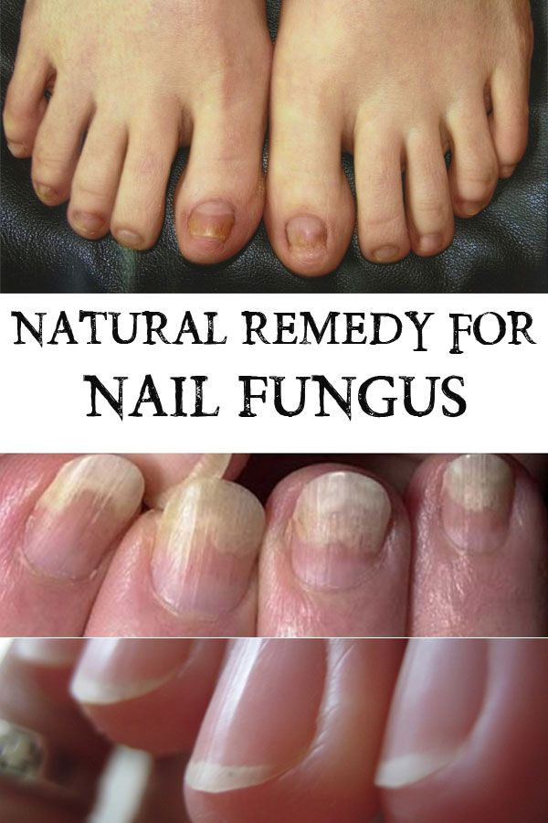 Natural Remedy for Nail Fungus | beauty | Natuurlijke Remedies ...