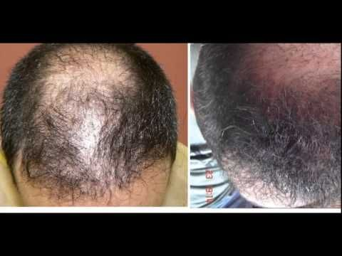 Terrible Hair Transplant With Bad Scarring Repaired Hair Loss