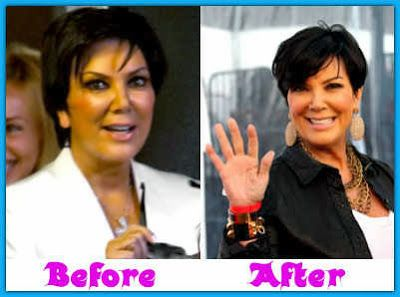 Kris Jenner cosmetic surgery is betting among press reporters. Although she hasn't demonstrated about those rumours but we could realize the change within her graphics
