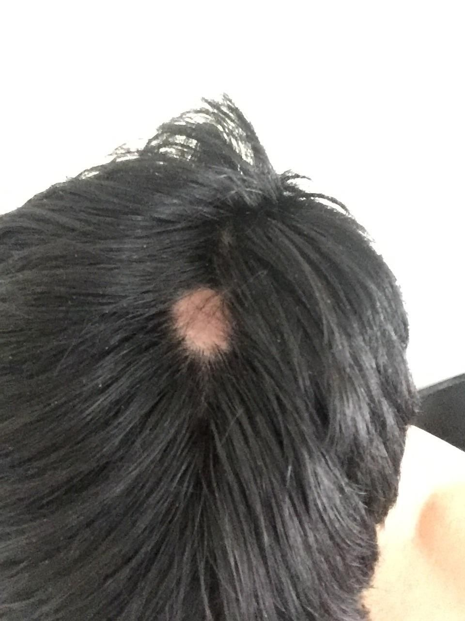I Have A Bald Spot Appearing On My Head No One In My Genetics Is Susceptible To Baldness So Im Kind Of Freaking Out Can Th Bald Spot Bald Spots Women