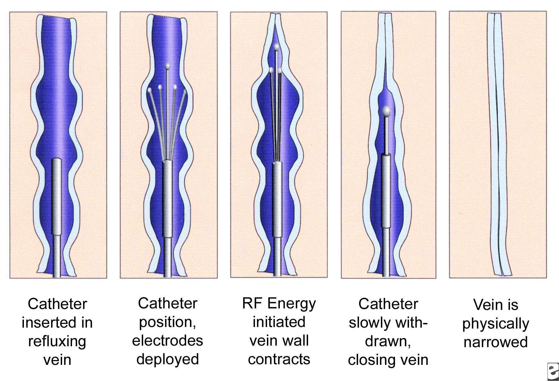 Radiofrequency Ablation Therapy For Varicose Veins