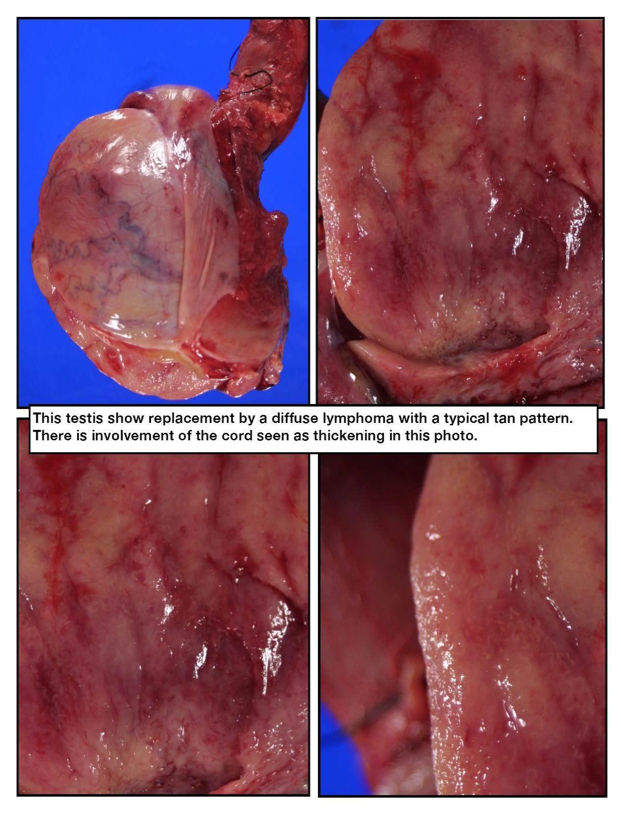 Lymphoma Of The Testis Diseases Greys Anatomy Anatomy Forensics