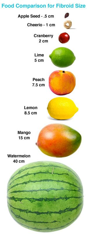 Chart comparing fruit sizes to fibroid also fibroids with fruits rh pinterest