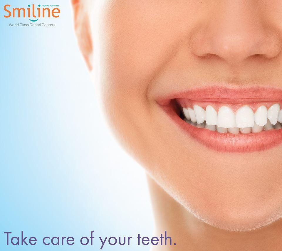 Smiline Dental is best Orthodontics in Hyderabad, Madhapur