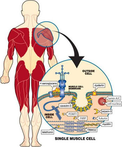 Limb Girdle Muscular Dystrophy 2i Limb Girdle Muscular Dystrophies Muscular Duchenne Muscular Dystrophy