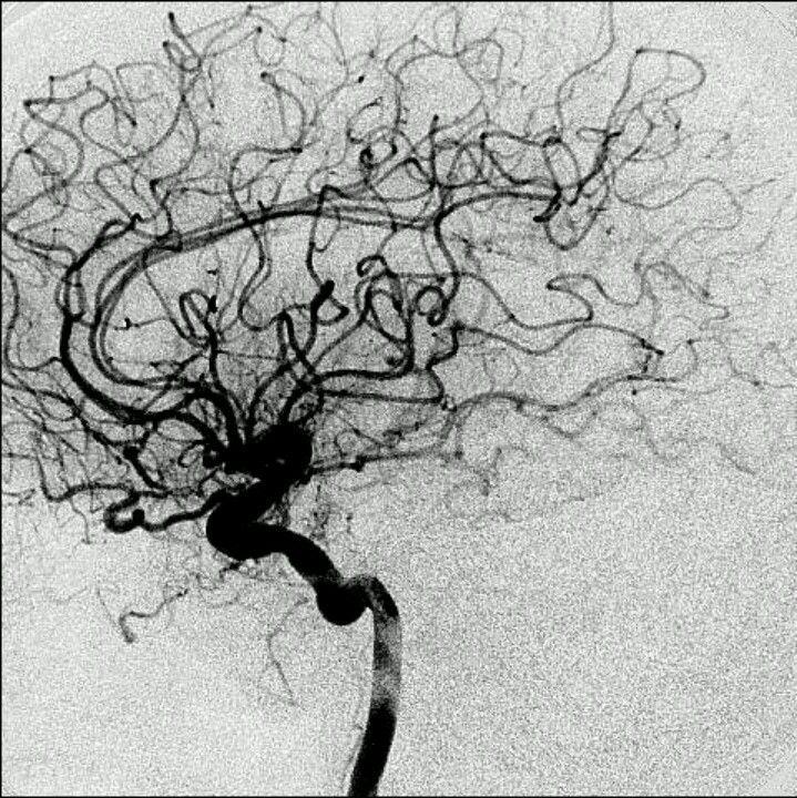 vasos cerebrales.arteriografia. | Cognition | Pinterest | Vasos