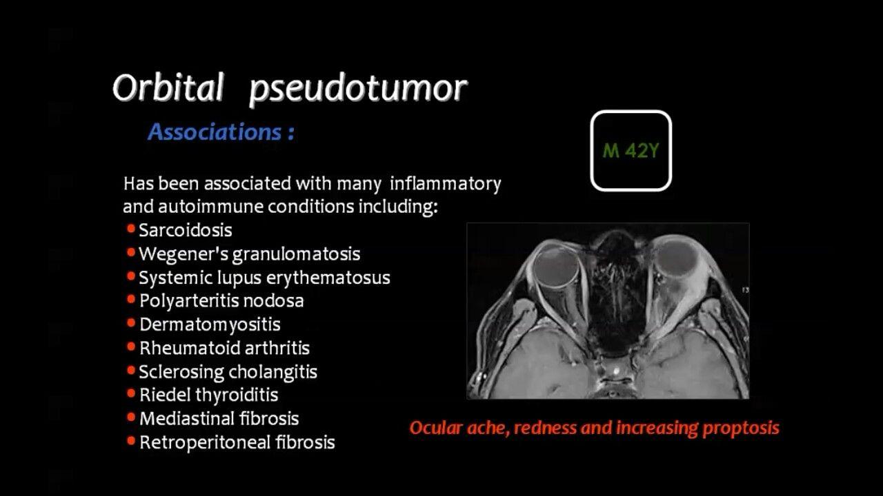 Pin By Dr Abuaiad On Brain Head And Neck Autoimmune Neuro Rheumatoid Arthritis
