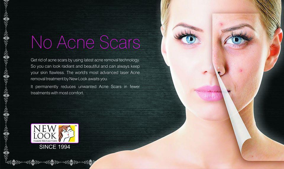 Skin Care Delhi Skin Clinic Laser Skin Clinic Skin Treatments