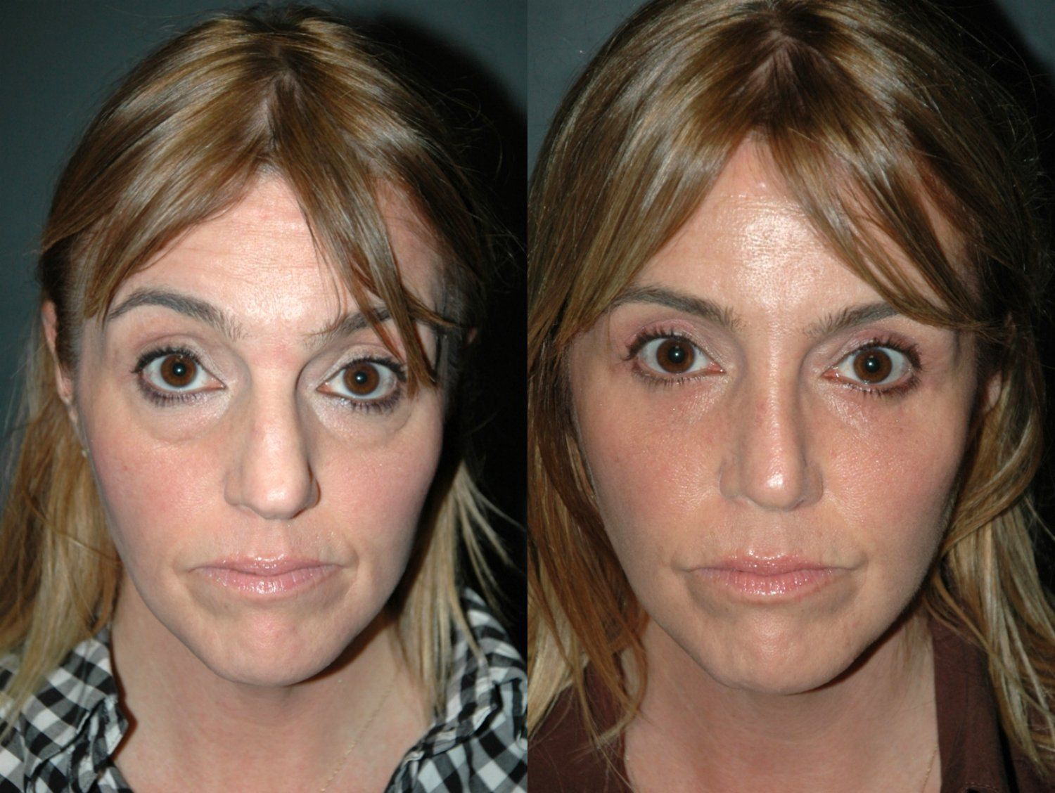 Bowling green ky eyelid surgery and nonsurgical