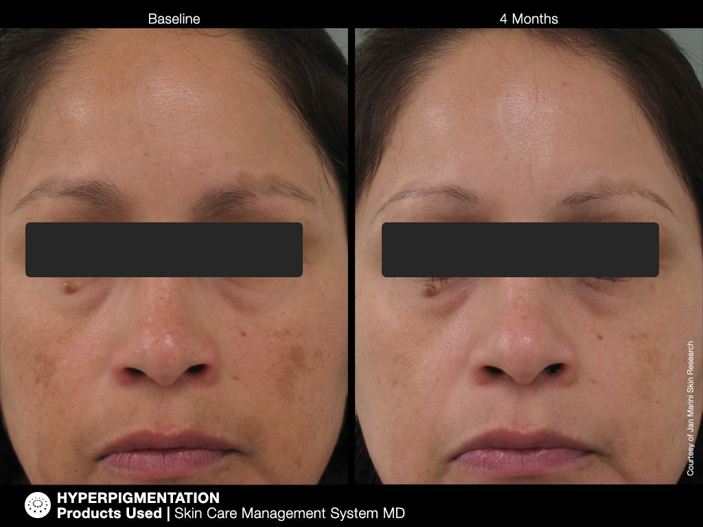 Hyperpigmentation Products Used Skin Care Management System Md Http Www Janmarini Com Results Photo Asp Id 14 Hyperpigmentation Skin Care Skin