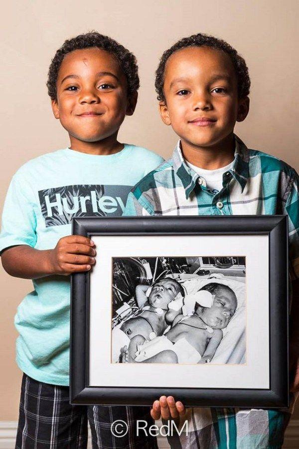 Ensaio Fotográfico Mostra o Antes e Depois de Bebês Prematuros