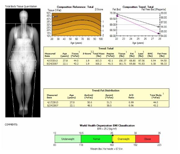 13+ Dexa scan t score for osteoporosis information