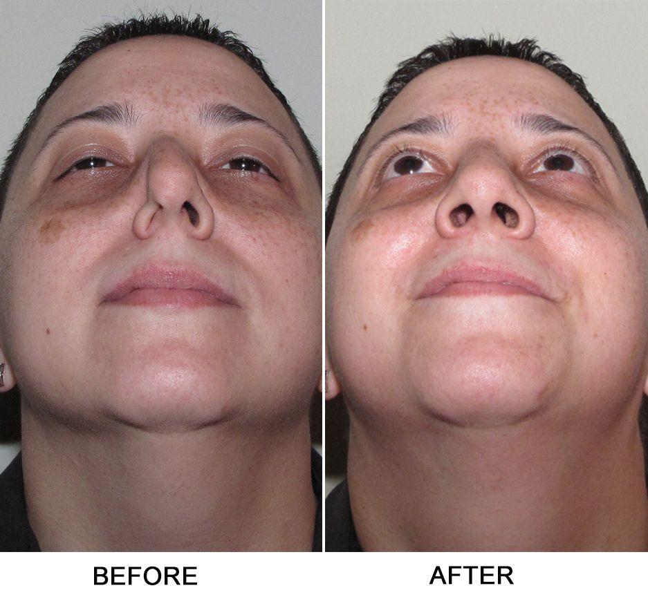 Turbinate Reduction, Septoplasty Sinus health, Sinusitis