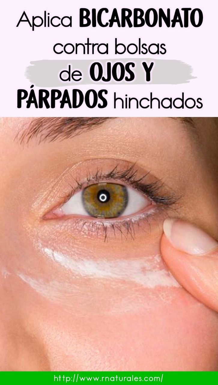 Bicarbonato Contra Bolsas De Ojos Y Párpados Hinchado Beauty Hacks Brown Spots On Face Natural Hair Mask