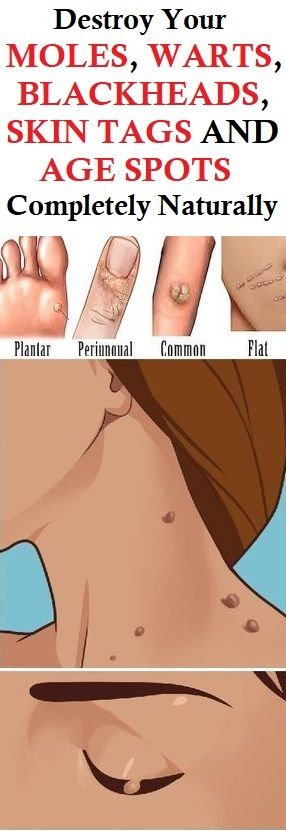 Image result for Destroy Your Moles, Warts, Blackheads, Skin Tags And Age Spots Completely Naturally