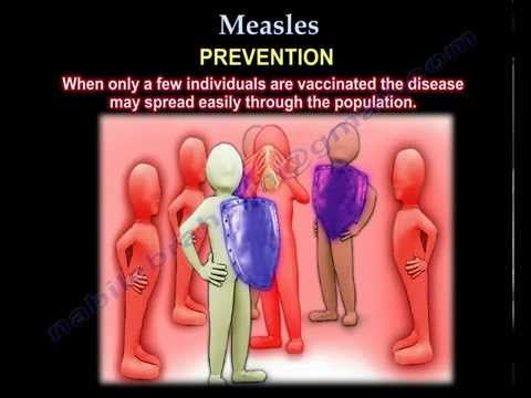 Measles - Everything You Need To Know - Dr. Nabil Ebraheim - YouTube