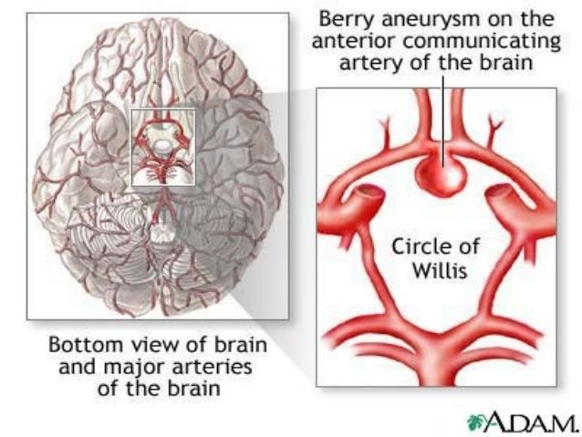Circle Of Willis Aneurysm Google Search Anatomy Pinterest