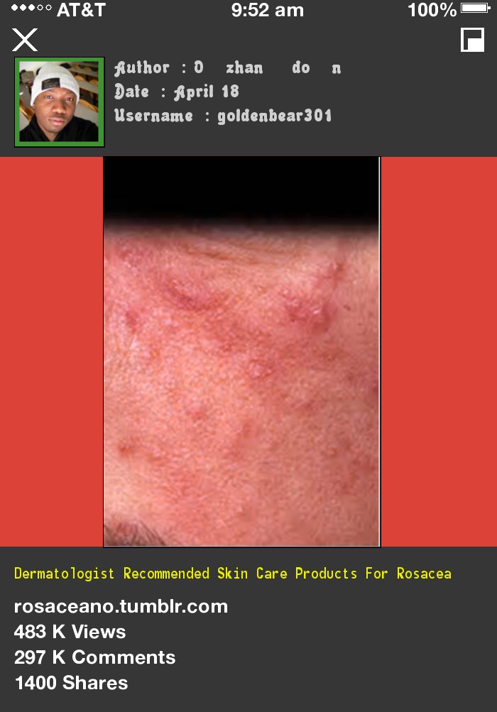 Dermatologist Skin Care Products For Rosacea