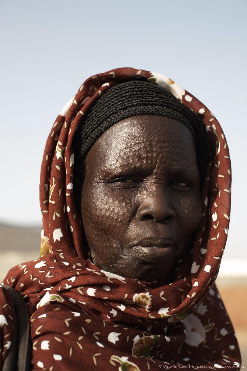 South Sudanese woman bearing tribal scarification markings