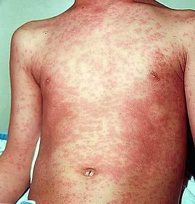 symptoms and treatment of measles Measles is a highly contagious viral infection of the respiratory system a widespread skin rash is a telltale sign of measles.