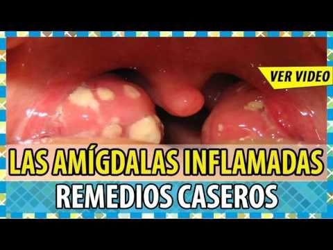 Amigdalitis Causas De La Amigdalitis Tratamiento Para La