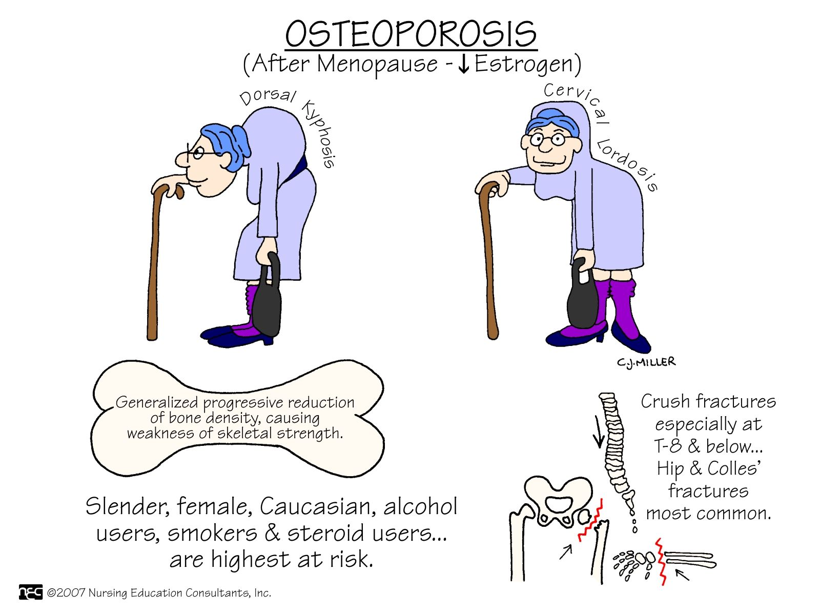 Osteoporosis Osteoporosis, which literally means porous bone, is a disease in which the density and quality of bone are reduced. As bones become more porous and fragile, the risk of fracture is greatly increased. The loss of bone occurs silently and progressively. Often there are no symptoms until the first fracture occurs.
