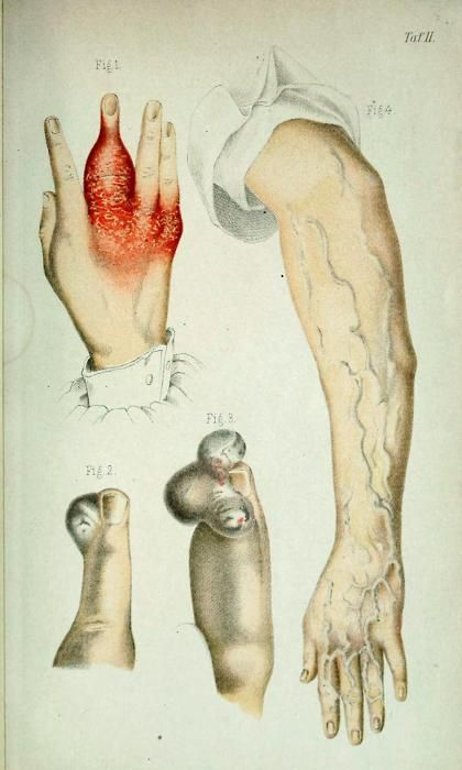Fig 1. Dactylitis syphilitica;  Fig 2. Digitale angiome;  Fig 3. Digitale angiome;  Fig 4. Congenitale diffuse Angiektasie der oberen Extremitaten