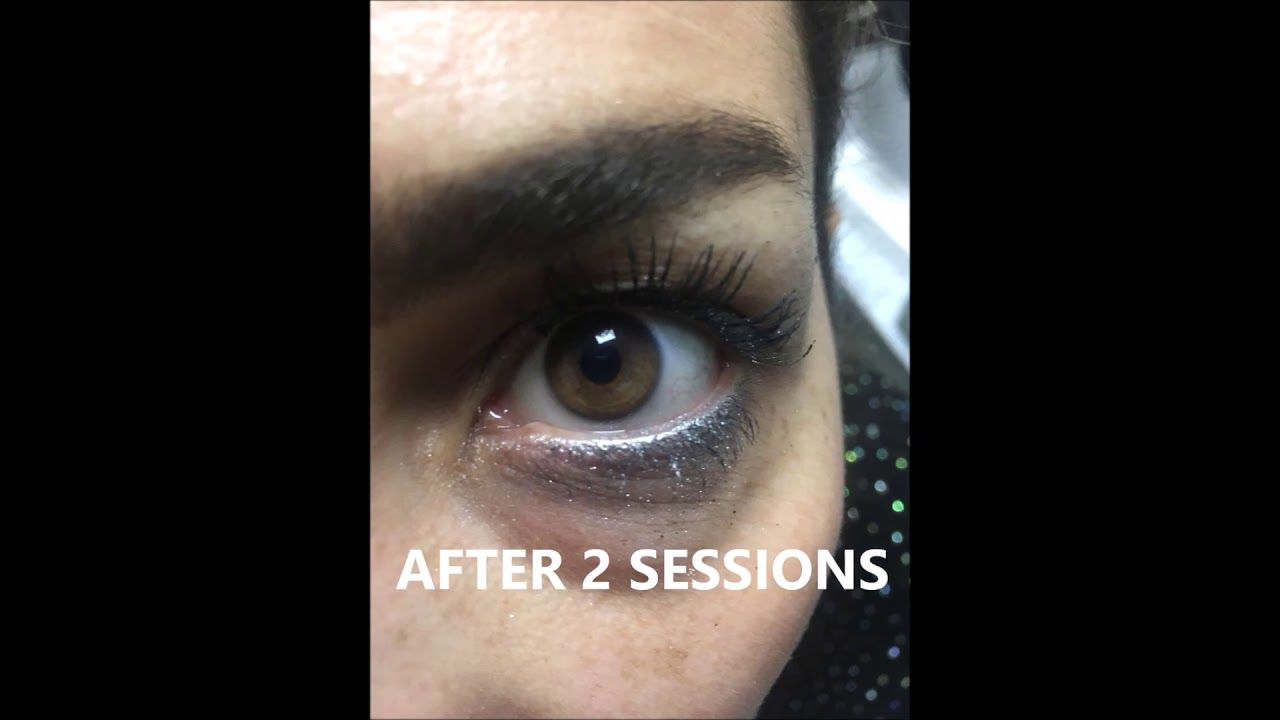 Get Blue Eyes In 15 Minutes With Laser 2020