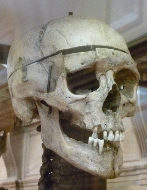 The Skull Of William Burke An Exhibit In The Anatomy Museum Of The