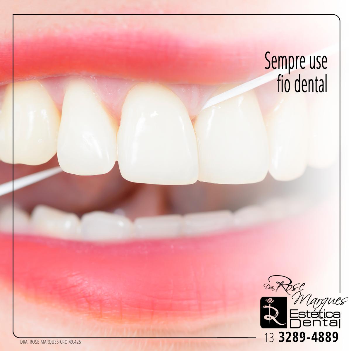 6a348f349 O uso do fio dental é muito importante para remover restos de alimentos e a  placa