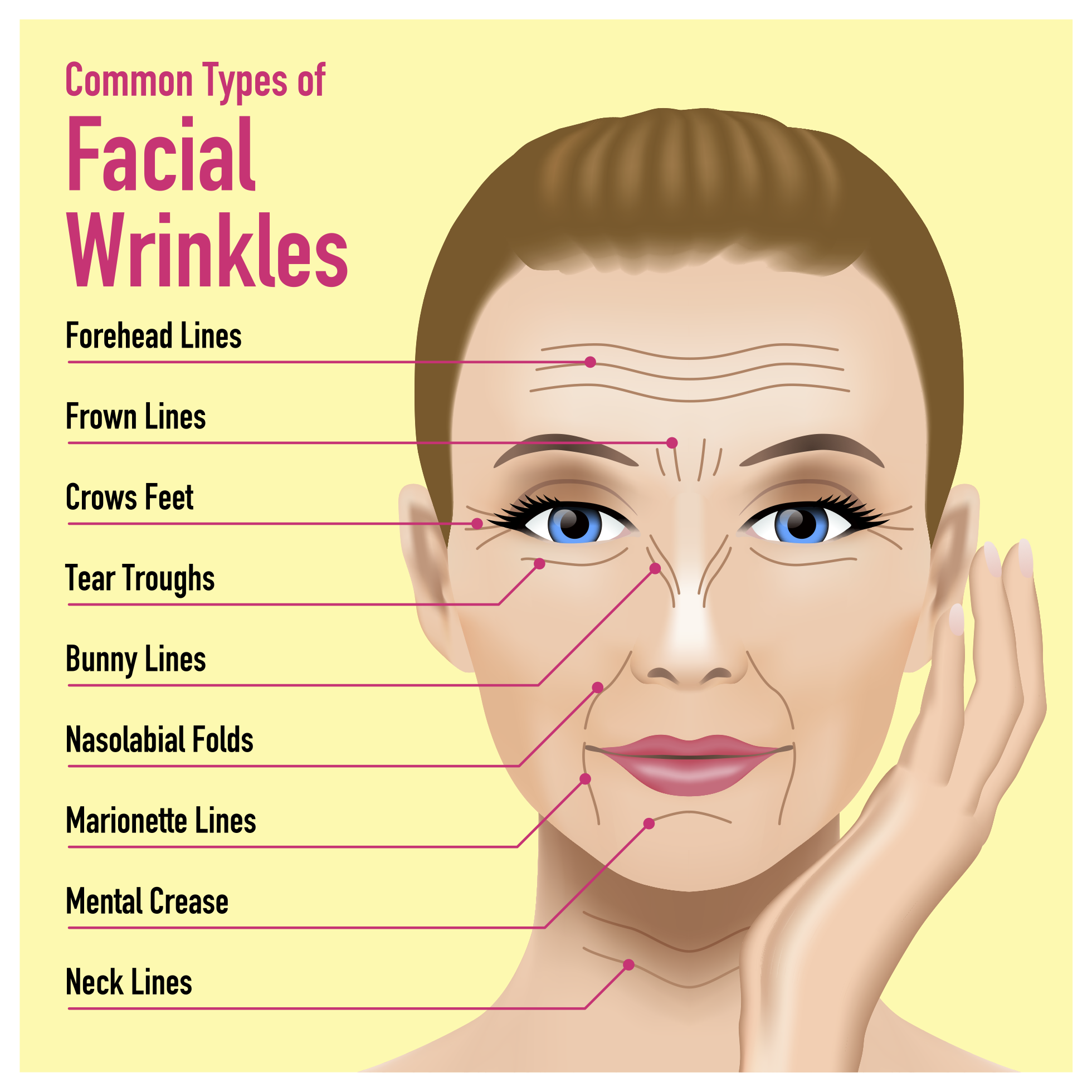 What are lines? Facial wrinkles,