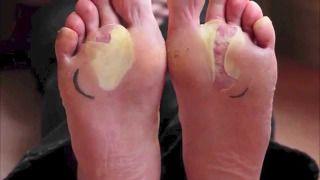 Remedios caseros para las ampollas en pies