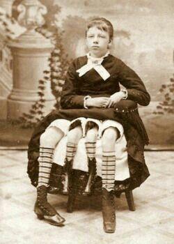 Las cuatro piernas de esta niña de nombre Myrtle Corbin, son reales, pues nació en 1868 con un mal congénito llamado dipygus, el cual provocó que tuviera doble pelvis.  La niña vivió sus primeros años siendo una de las atracciones de un circo, pero más tarde se casó con un médico, con quien tuvo cinco hijos. Murió a los 60 años de edad.