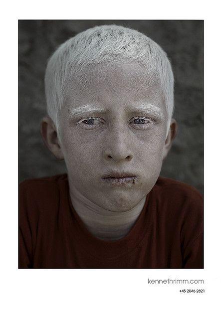 Albino Boy Kabul Albino Human Albinism Albino