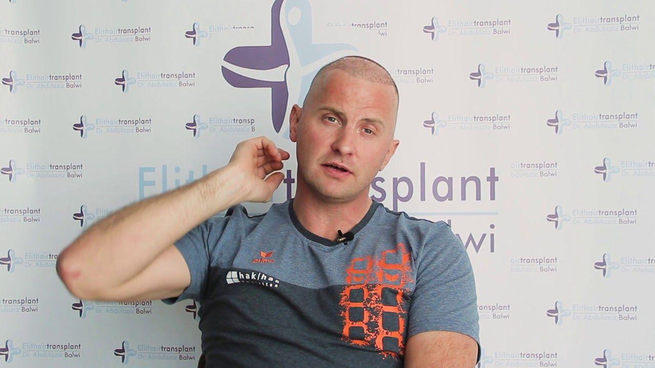 Haartransplantation Erfahrungen in der Türkei Istanbul
