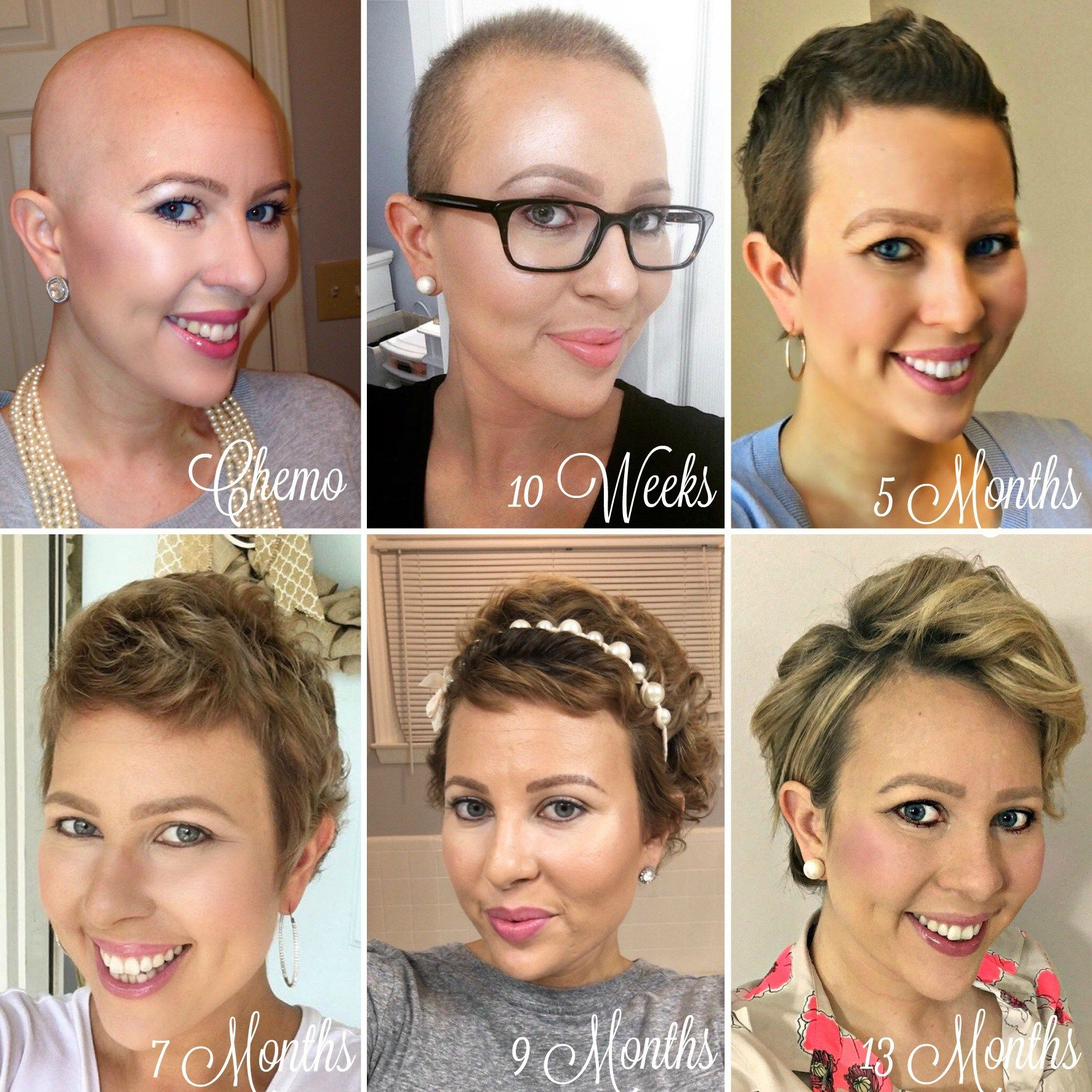 1 Year Hair Growth Chemo Hairless My Cancer Chic