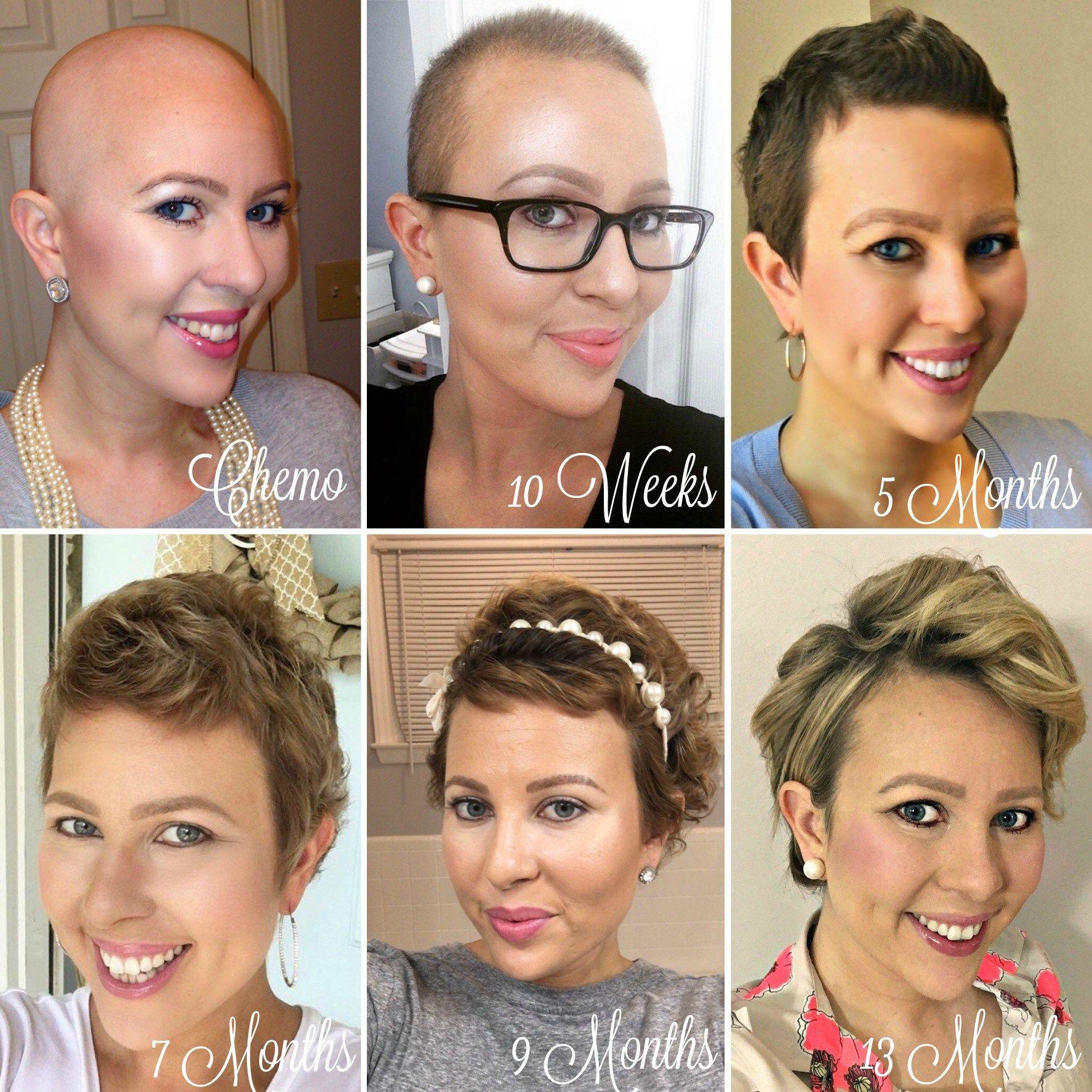 1 Year Hair Growth Chemo Hairless My Cancer Chic