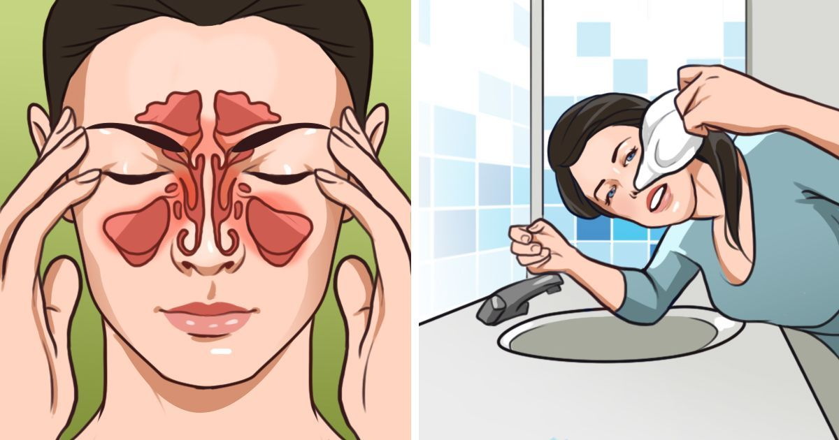 Don't suffer through a sinus infection. Here are 8 home remedies to help you out  #wieghtloss  #home...