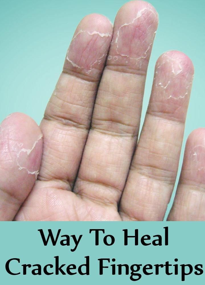 5 Way To Heal Cracked Fingertips Cracked Fingertips Peeling Fingertips Skin Peeling On Hands